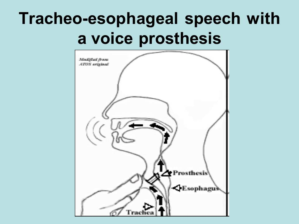 of esophagus Co...